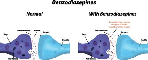 Benzodiazepines for Alcohol Withdrawal - AddictionCenter