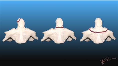 Anderson D'Alonzo Classification of Odontoid Fractures