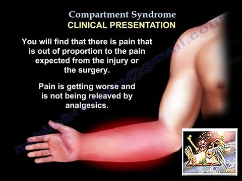 PPT - Abdominal Compartment Syndrome PowerPoint