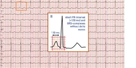 Short PR-interval and normal QRS-complex | Cardiocases